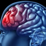 Lost & Found: What Brain Injury Survivors Want You to Know